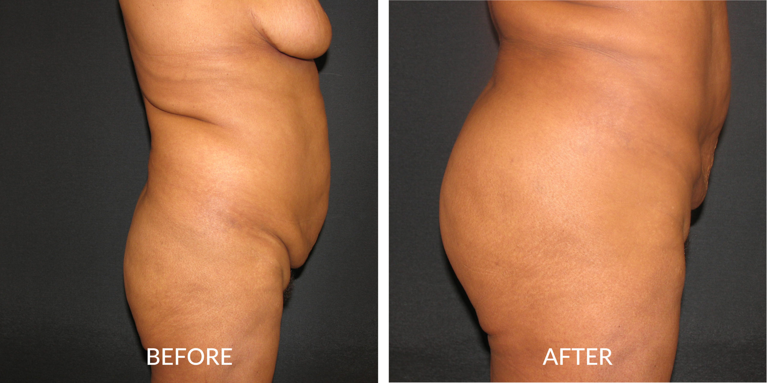 Before & After Buttocks Augmentation